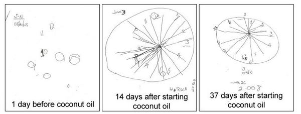 Alzheimer's clock test results before and after coconut oil