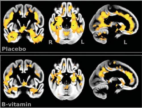 brain scans comparing atrophy of those who took b vitamins vs a placebo